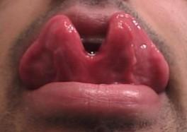 Разрезание языка или tongue splitting